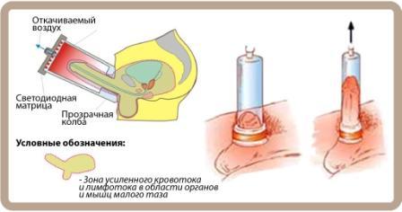 ЛОД терапия Харьков Ла Вита Сана