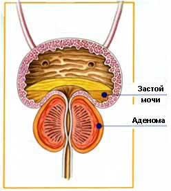 Лечение аденомы предстательной железы Харьков