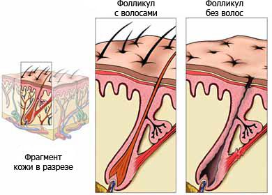 Лечение облысения Харьков
