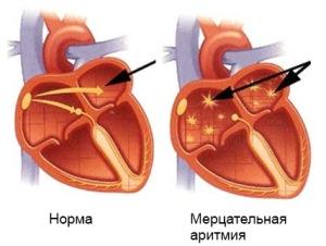 Лечение аритмии Харьков Ла Вита Сана