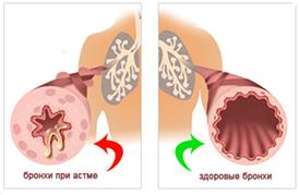 Лечение бронхиальной астмы Харьков