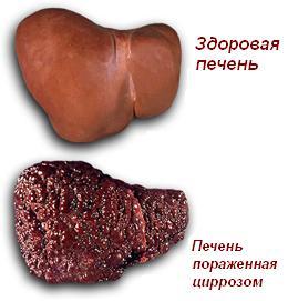 Лечение цирроза печени Харьков Ла Вита Сана