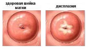 Лечение дисплазии шейки матки Харьков Ла Вита Сана