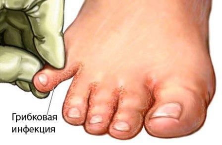 Лечение эпидермофитии Харьков Ла Вита Сана