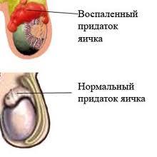 Лечение эпидидимита Харьков Ла Вита Сана
