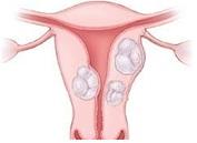 Лечение фибромиомы матки Харьков Ла Вита Сана