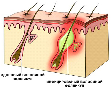 Лечение фолликулита Харьков Ла Вита Сана