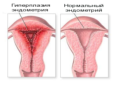 Лечение гиперплазии эндометрии Харьков Ла Вита Сана