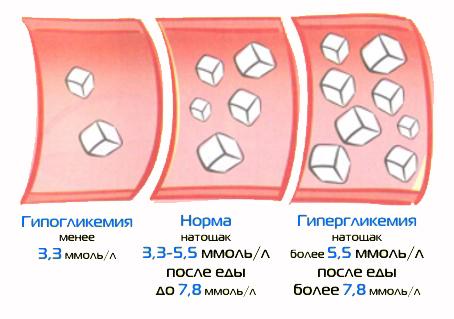 Лечение гикогликемии Харьков Ла Вита Сана