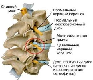 Лечение межпозвоночной грыжи Харьков Ла Вита Сана