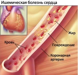 Лечение ишемической болезни сердца Харьков Ла Вита Сана