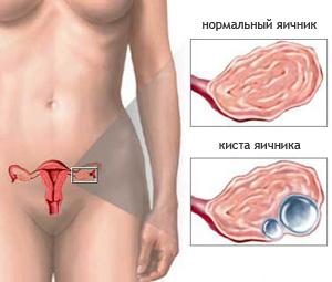 Лечение кисты яичников Харьков Ла Вита Сана