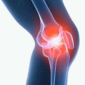 Лечение феморопателлярного артроза