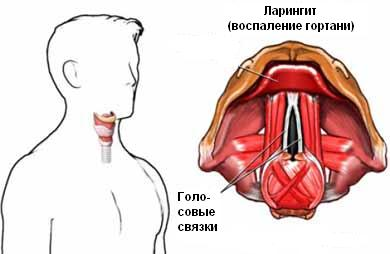 Лечение ларингита Харьков Ла Вита Сана