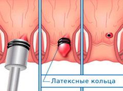 Лечение геморроя без операции в харькове