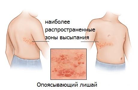 Лечение опоясывающего лишая Харьков Ла Вита Сана