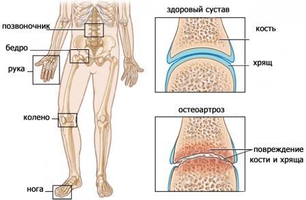 Лечение остеоартроза Харьков Ла Вита Сана