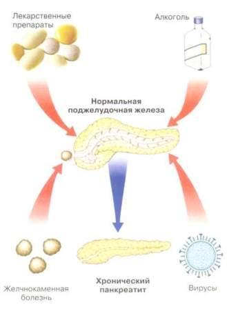 Лечение панкреатита Харьков Ла Вита Сана