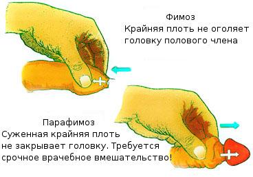 как увеличить пенис дома Челябинская область