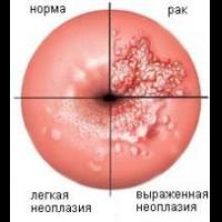 Лечение патологий шейки матки Харьков