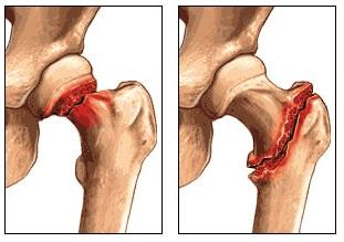Перелом шейки бедренной кости