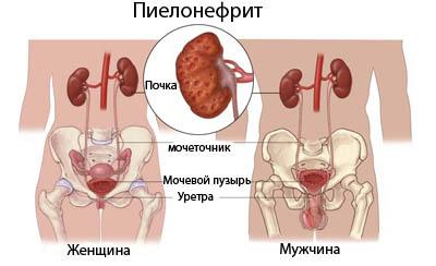 Лечение пиелонефрита Харьков Ла Вита Сана