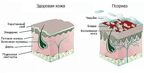Лечение псориаза Харьков Ла Вита Сана