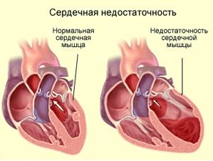 Лечение сердечно-сосудистой недостаточности Харьков Ла Вита Сана