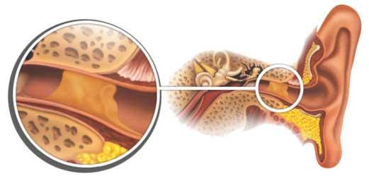Пробки в ушах. Правильный уход  за органами слуха.