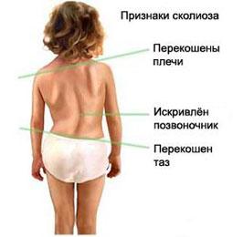 Лечение сколиоза Харьков Ла Вита Сана