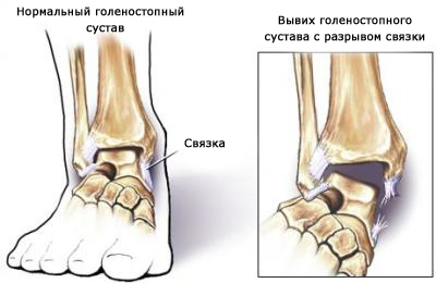 Лечение ушибов и связок Харьков Ла Вита Сана