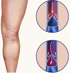Лечение варикоза Харкьов