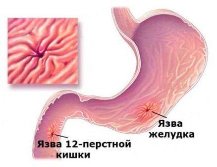 Лечение язвы Харьков Ла Вита Сана